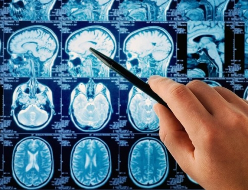 Ny kreftstatistikk fra svenske myndigheter viser kraftig økning av kreft i hode- og halsområdet