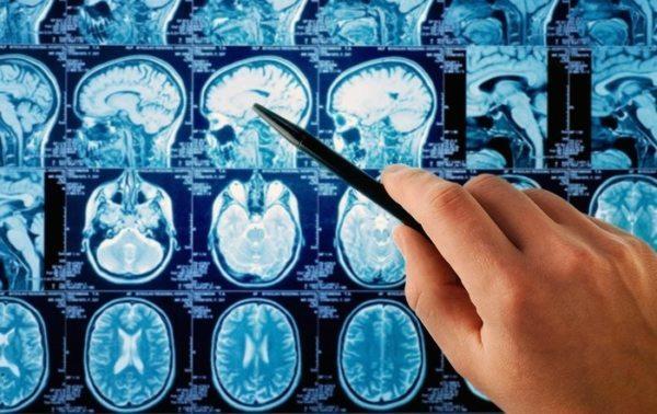 Hjernesvulststatistikk fra American Brain Tumor Association