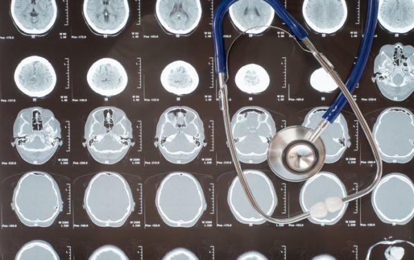 Lennart Hardell med flere resultater fra Interphone-studien om mobilbruk og hjernesvulst