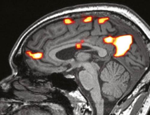 fMRI kan brukes til å oppdage unormal hjernefunksjon hos el-overfølsomme